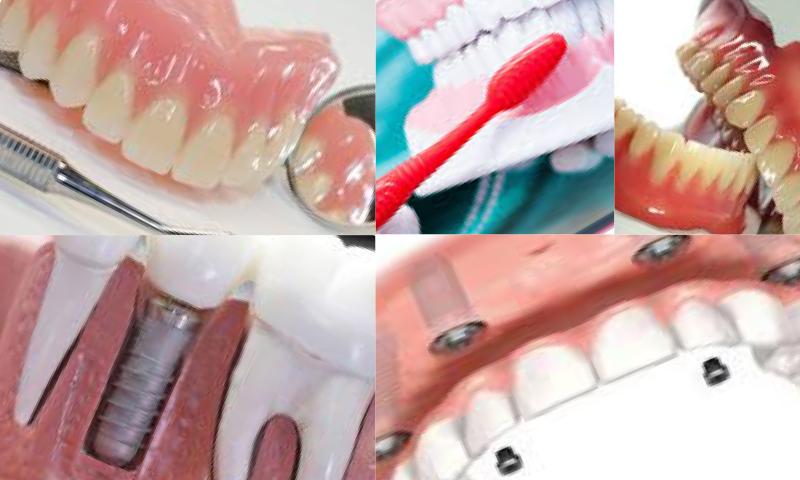 Protetik Diş Tedavisinde Uygulanan Protez Türleri